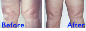 Liposuction Knee