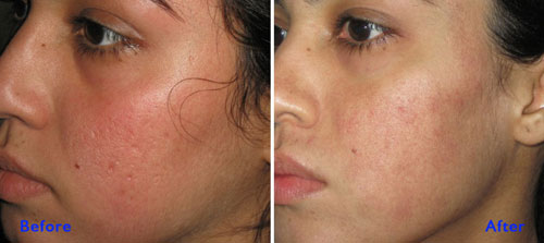 laser scar treatment